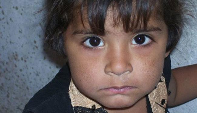 Una bambina accolta in un centro di Msf a Jamshoro, cittadina che si trova a una ventina di chilometri da Hyderabad e a 150 chilometri a nordest di KarachI.