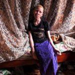 Kathrine, ugandese dagli occhi azzurri: «Sono albina, non una strega»